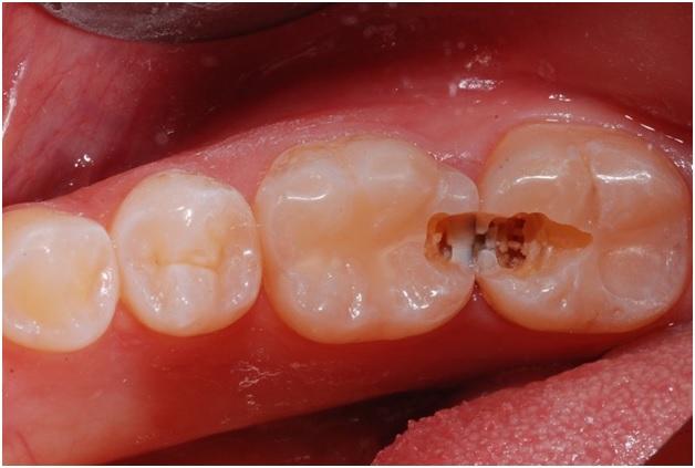 Ce sunt cariile dentare?