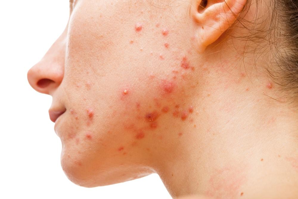 Ce este acneea?